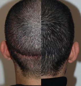 Hair Transplant for Him